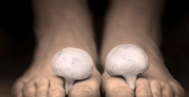 Природни лекови за габи под ноктите