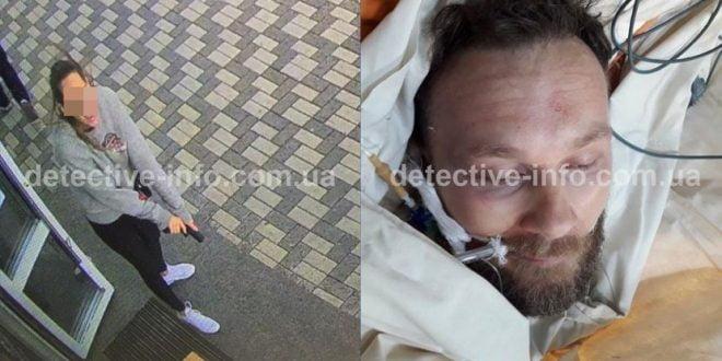 Објавени слики од повредениот водач на кавачкиот клан и неговата сопруга која излегла да го брани со пиштол (фото)