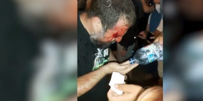 Српската полиција брутално удри по демонстрантите (ВИДЕО)
