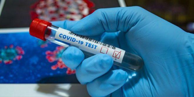 Коронавирусот забрзано се шири во Штип,  земени 130 контролни брисеви