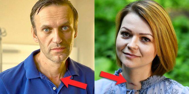 """Дали е ова доказ дека Навални бил отруен? Има иста лузна како друга жртва на """"новичок"""""""